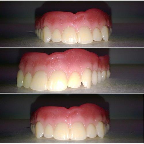 Best dentures 2