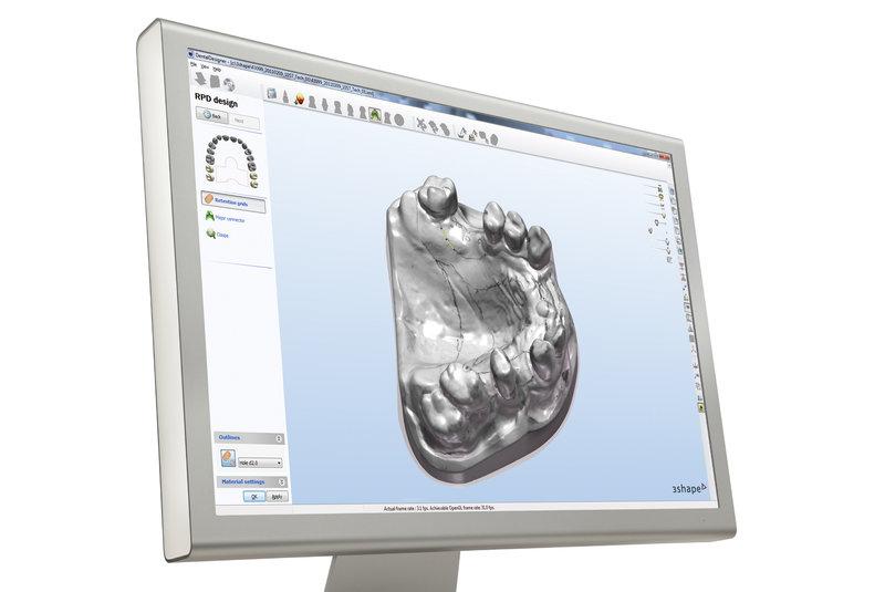 cutting edge technology digital dentures